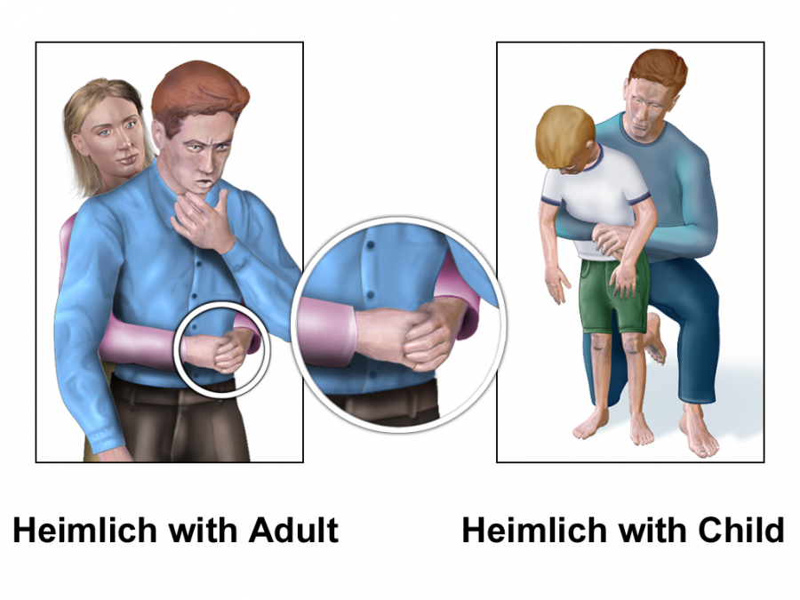 How the Heimlich Maneuver Saved a Students Life